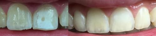 behandeling witte vlekken voor en na